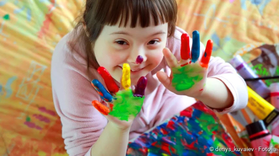 , Down syndrome (trisomy 21): symptoms, consequences, cause