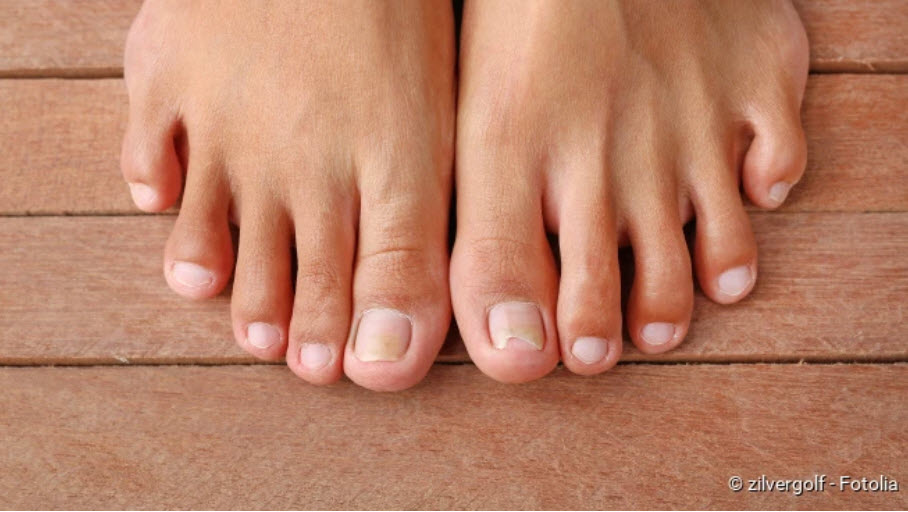 , Nail fungus: What helps, how to recognize it?