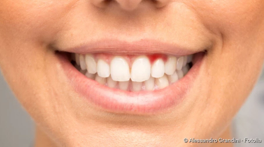 , Gingivitis: causes, symptoms, treatment