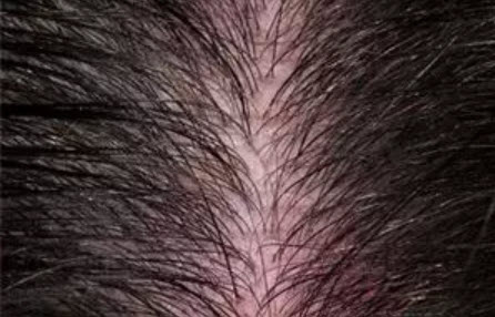 , Sensitive and extremely sensitive scalp