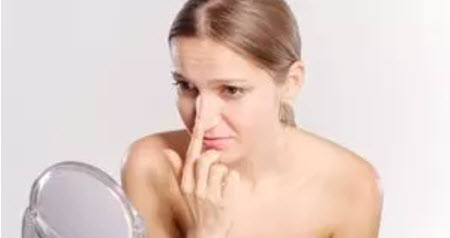 , Pimple squeezing –  yes or no?