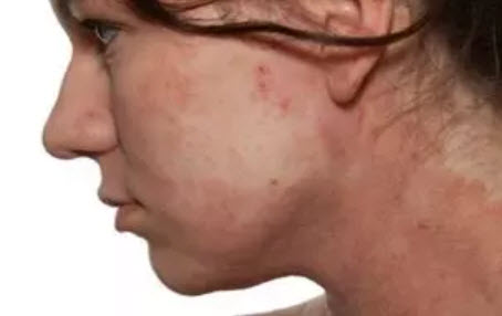 , Neurodermatitis in the face. What helps?