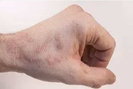 , Neurodermatitis on the hands: What helps?