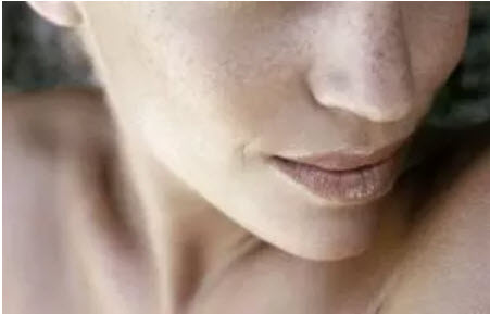 , Hyperpigmentation: What Is It And What To Do