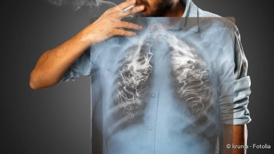, Lung cancer (bronchial carcinoma): warning signals, therapy