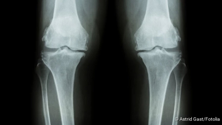 , Arthrosis (joint degeneration): causes, symptoms, treatment
