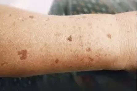 brown spots on skin, Brown spots on skin: Are they dangerous?