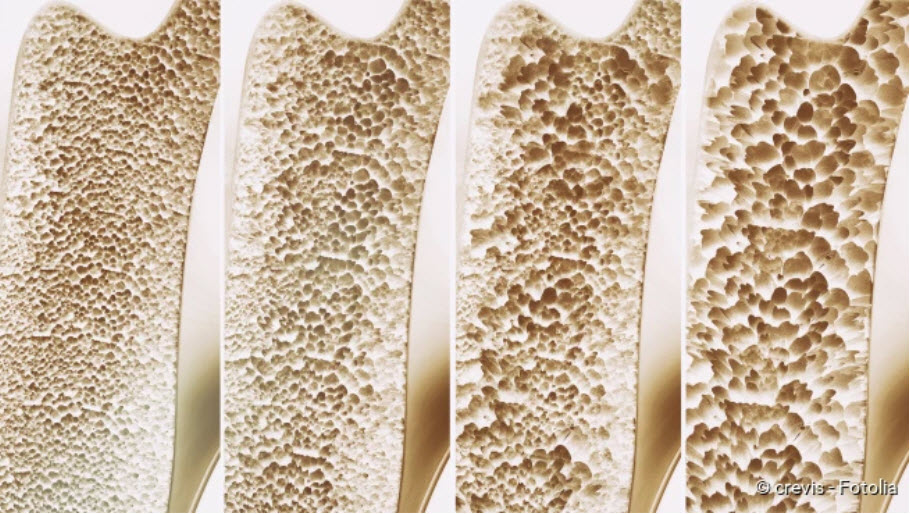 , Osteoporosis: description, symptoms, therapy, prevention
