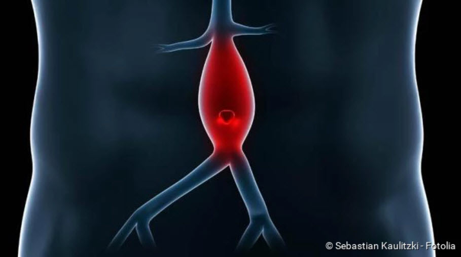 , Aneurysm: Types, warning signs, causes, first aid!