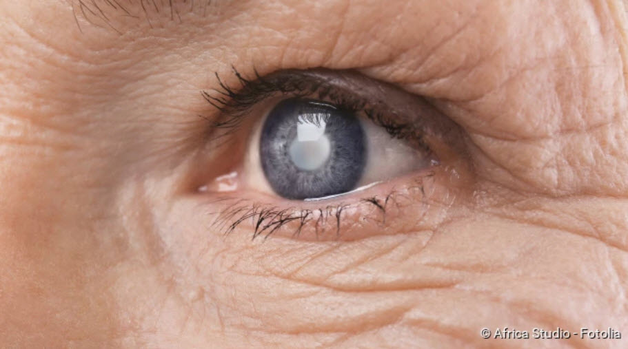 , Cataracts: symptoms, causes, treatment