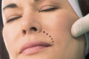 , Prevent and treat wrinkles in time